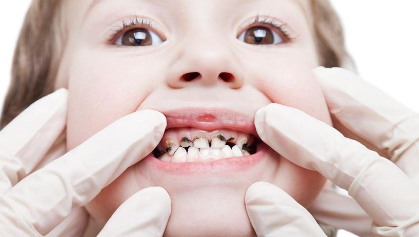 Çocuklarda Diş Çürümesini Engellemek